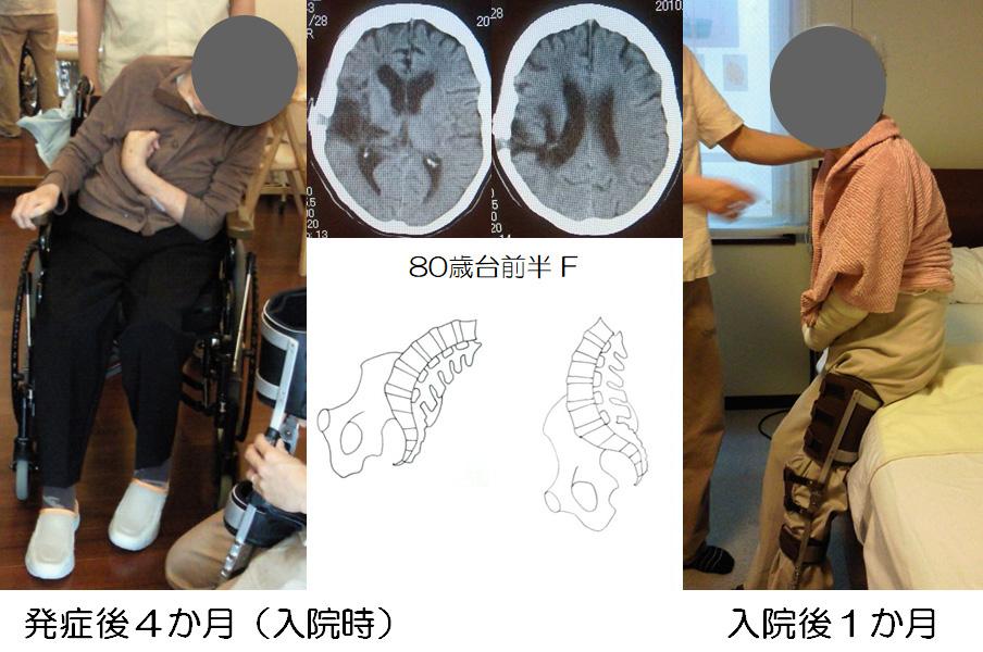 図4 著しい姿勢定位障害をもつ症例の座位と高座位の姿勢の比較