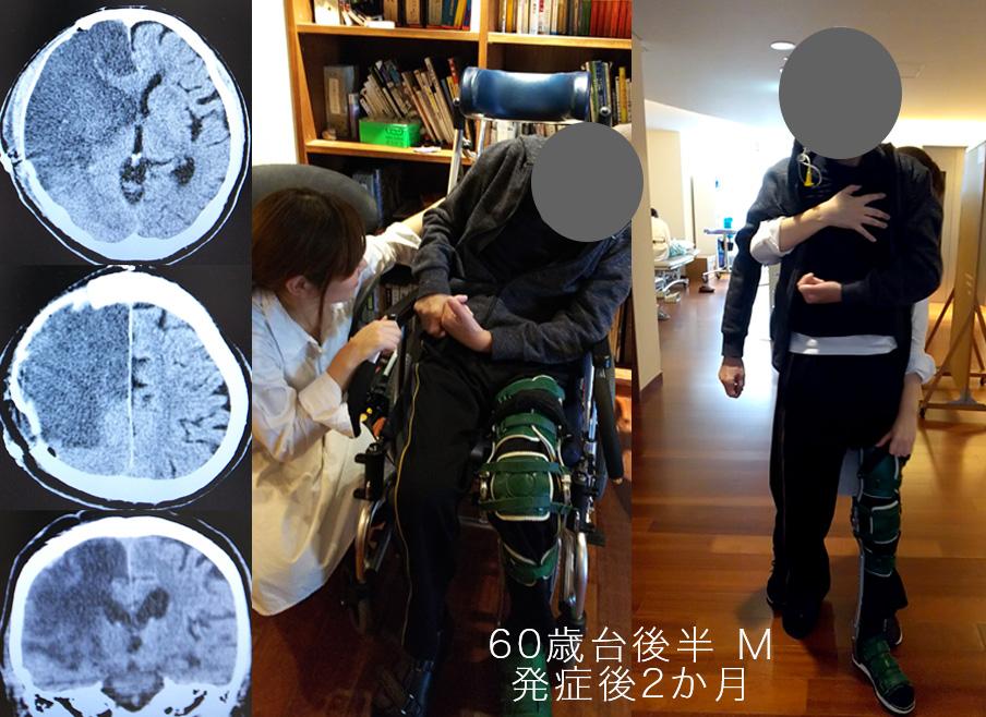 図6 著しい姿勢定位障害をもつ症例の座位と介助歩行の比較