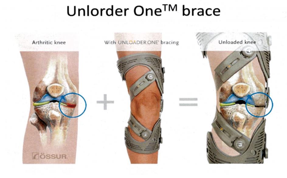膝OAに対する最新の治療戦略 前編